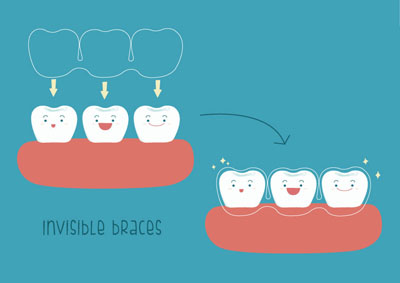 The Facts From An Invisalign® Dentist